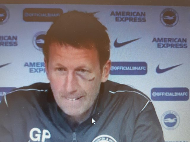 Brighton head coach Graham Potter sporting a shiner and three stiches at today's press conference